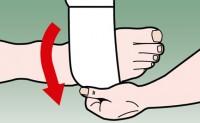 如何用十字绷带法固定脚踝